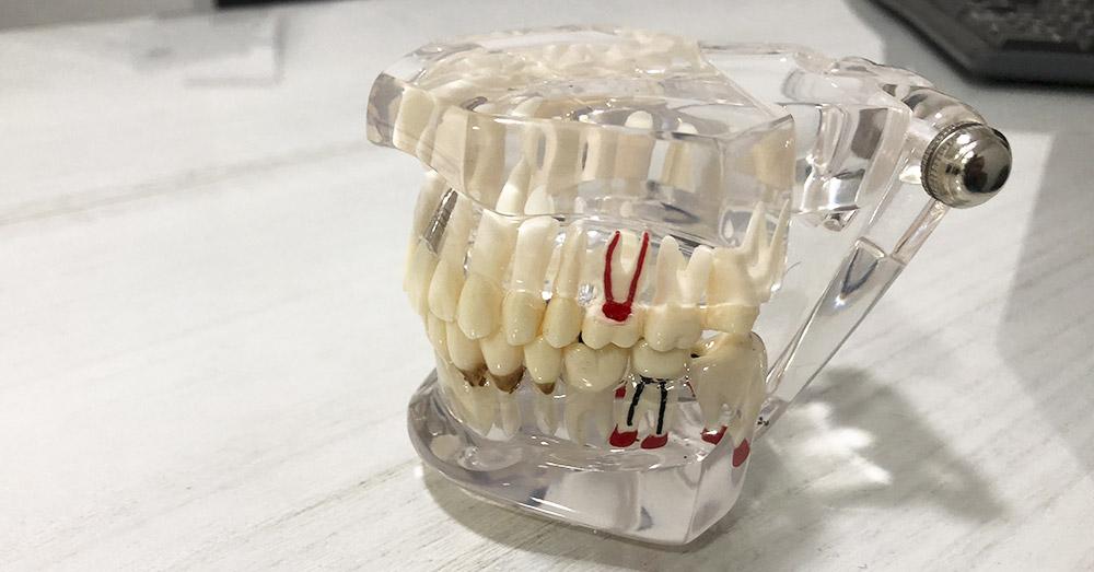 explicacion-dolencia-dental